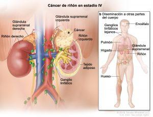 ¿Por qué sucede el cáncer de riñón?